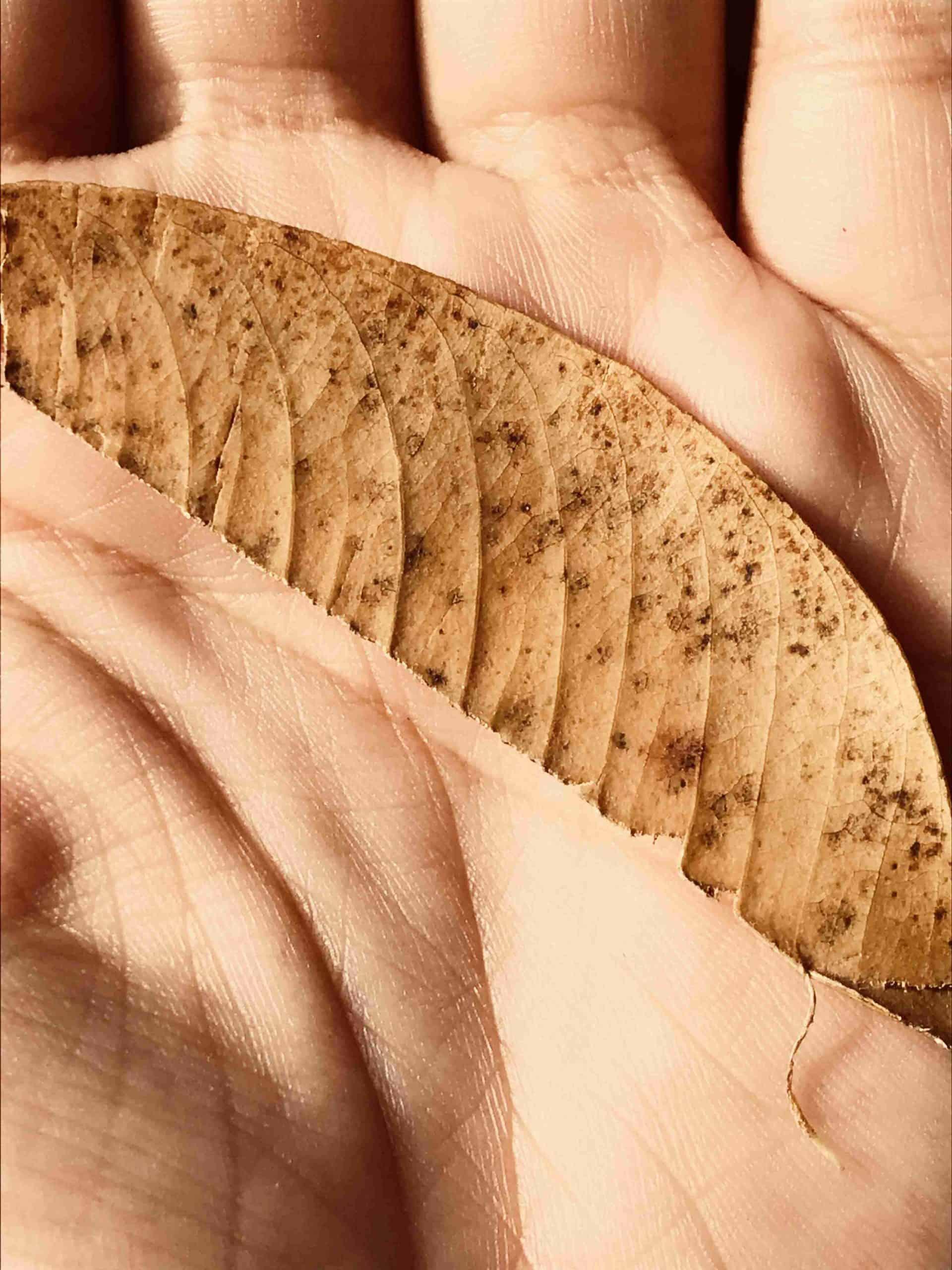 Dry Hands Dry Skin